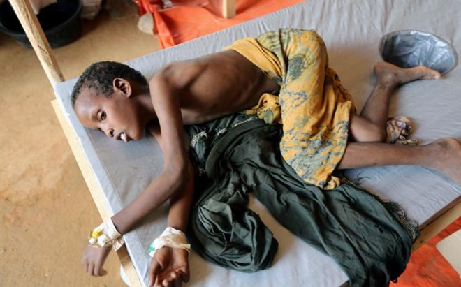 FILE PHOTO: An internally displaced Somali child who fled from drought stricken regions receives treatment inside a hospital ward for diarrhea patients in Baidoa, west of Mogadishu, Somalia March 26, 2017. REUTERS/Feisal Omar /File photo
